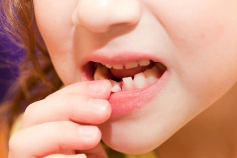 Приснилось что прорезается зуб