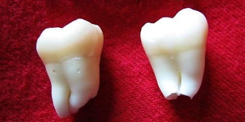 Приснились осколки от зубов