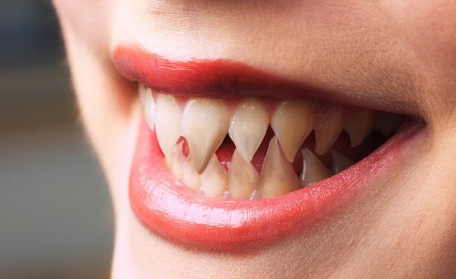 Примером к чему снится челюсть с зубами выпала магазины