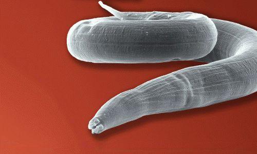 самые популярные паразиты в организме человека