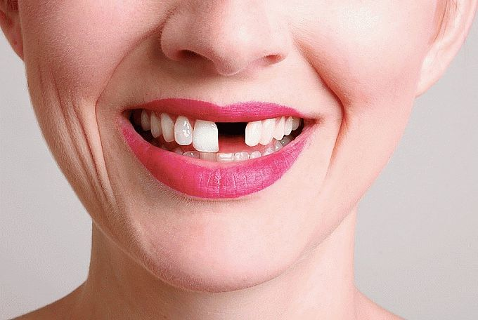 Сонник: выпал зуб без крови и боли