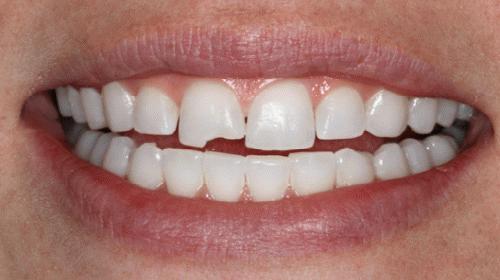 Сонник зубы крошатся и выпадают с кровью