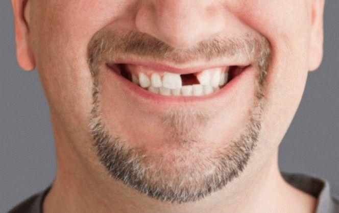 К чему снится сломанный зуб?
