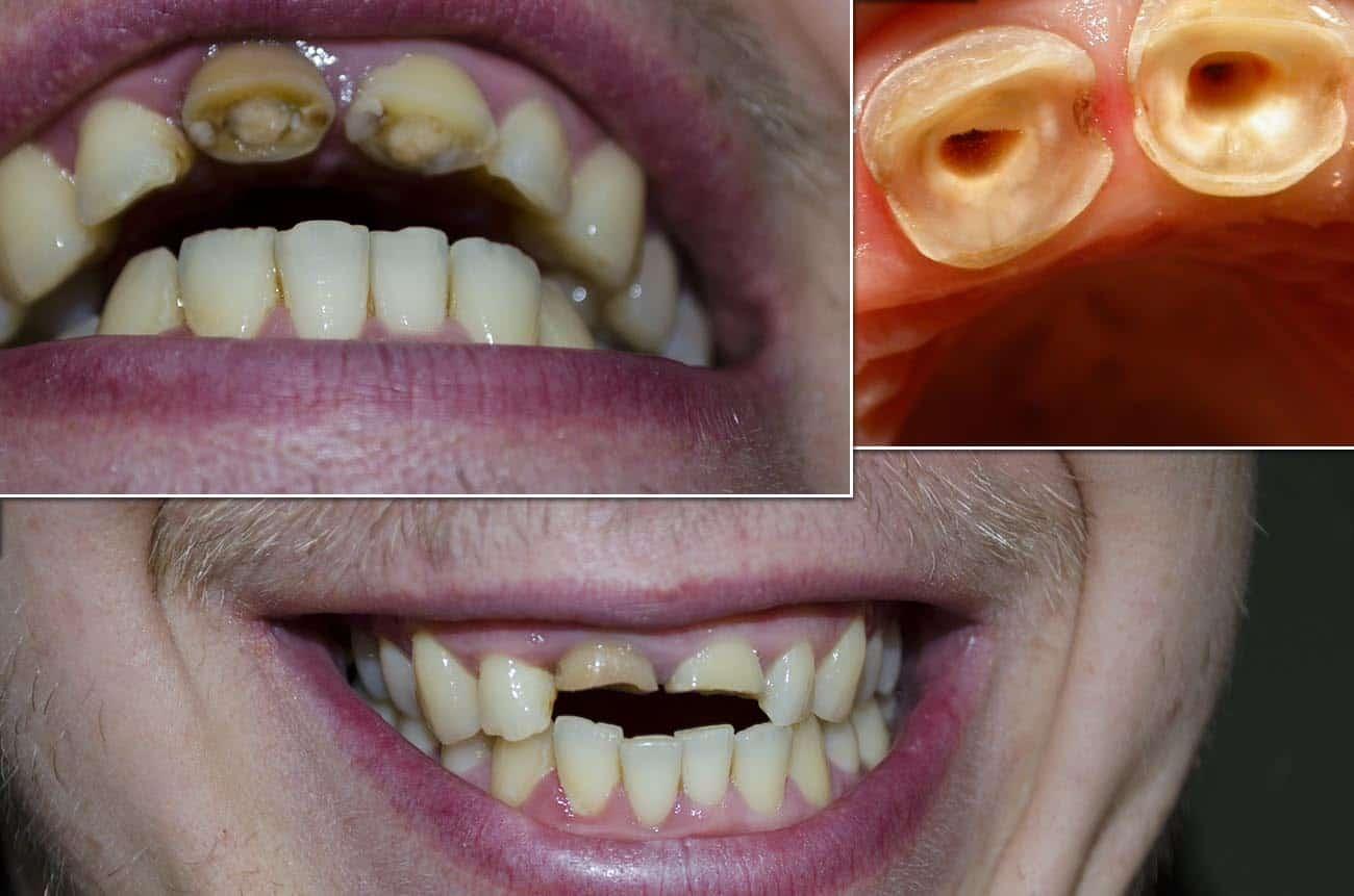 Сонник зубы гнилые передние