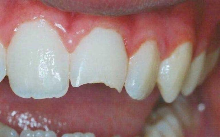 Сонник откололся кусочек зуба переднего без крови
