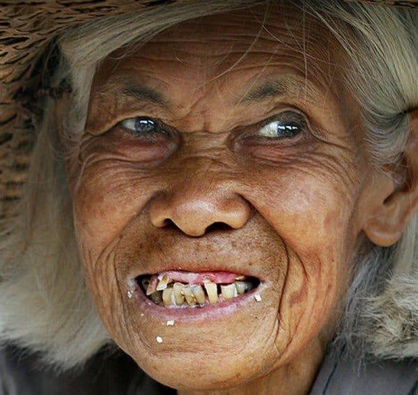 Что означают зубы в сновидениях и как растолковать по сонникам значения