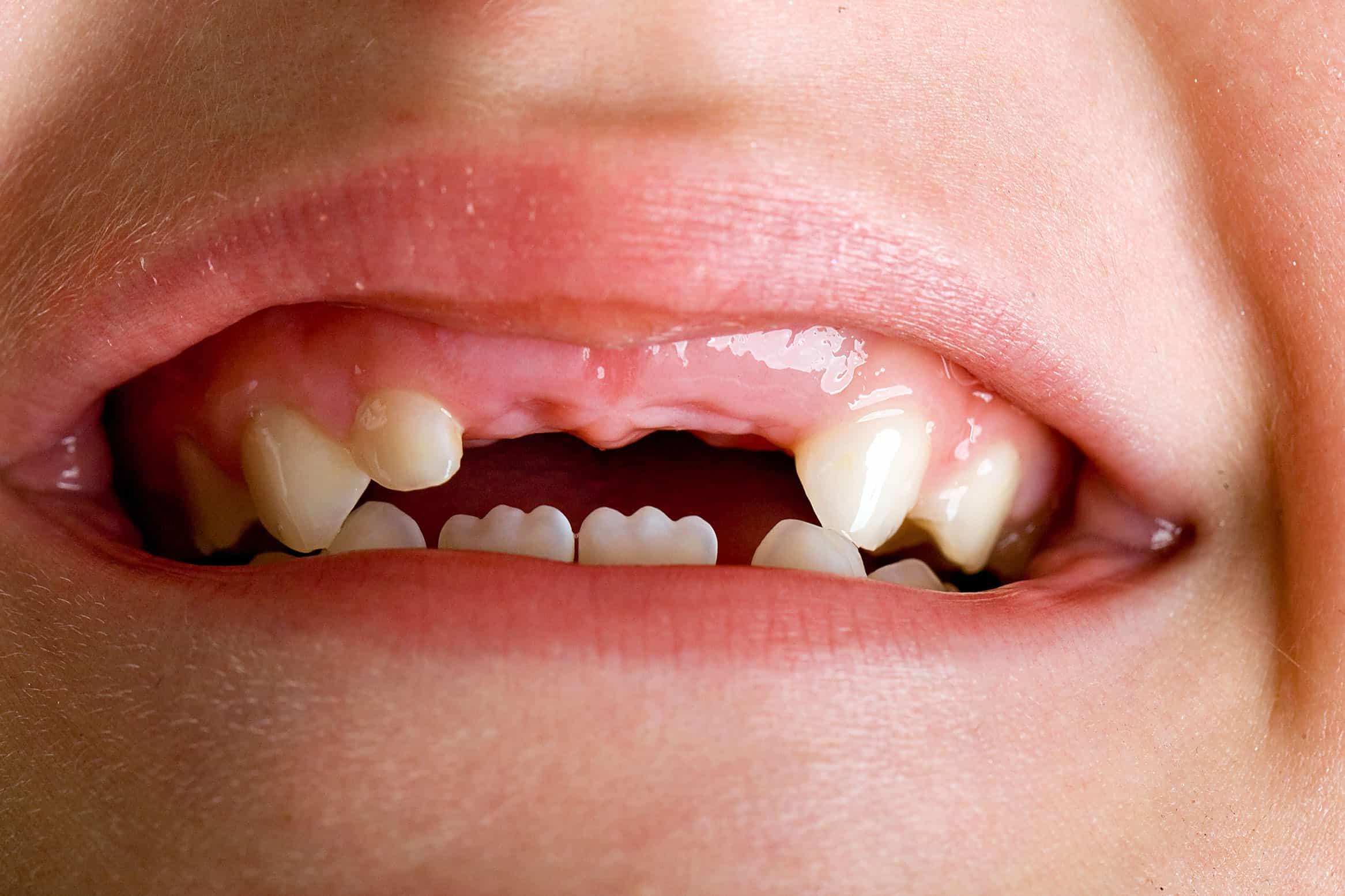 Зубы младенца