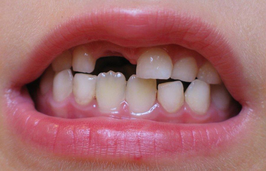Выпавший зуб ребенка