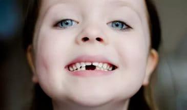 Девочка без зуба