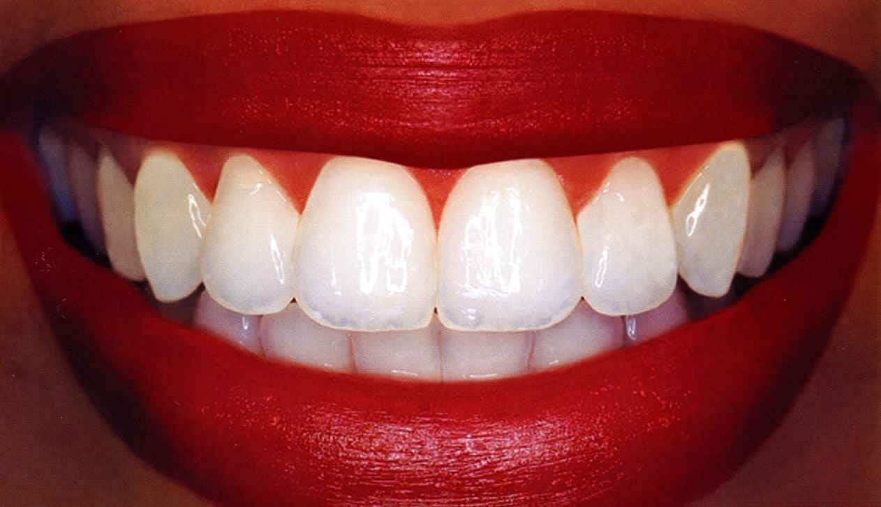 К чему снятся зубы по сонникам и основным значениям