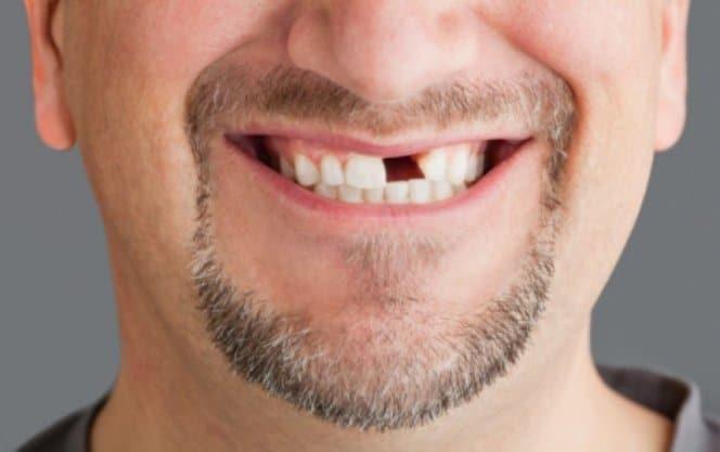 Выбитый передний зуб
