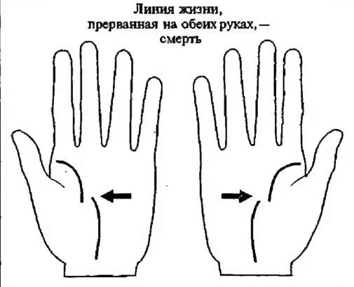 разрыв линии жизни на обеих руках