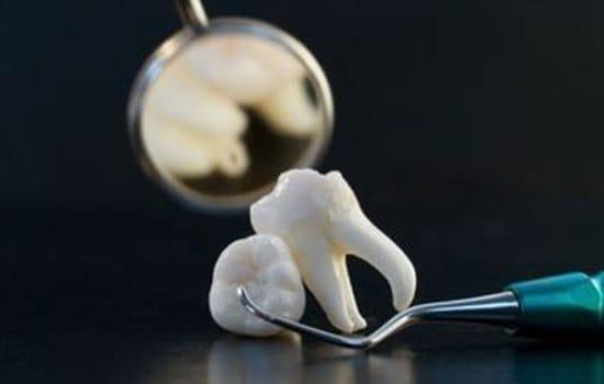 вырванный зуб - укажет на огорчения